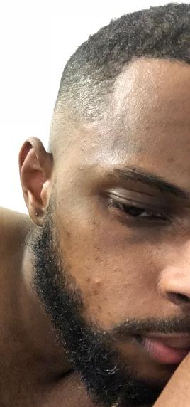 MonsieurJohn crâne rasé et chaleurs, canicule 1